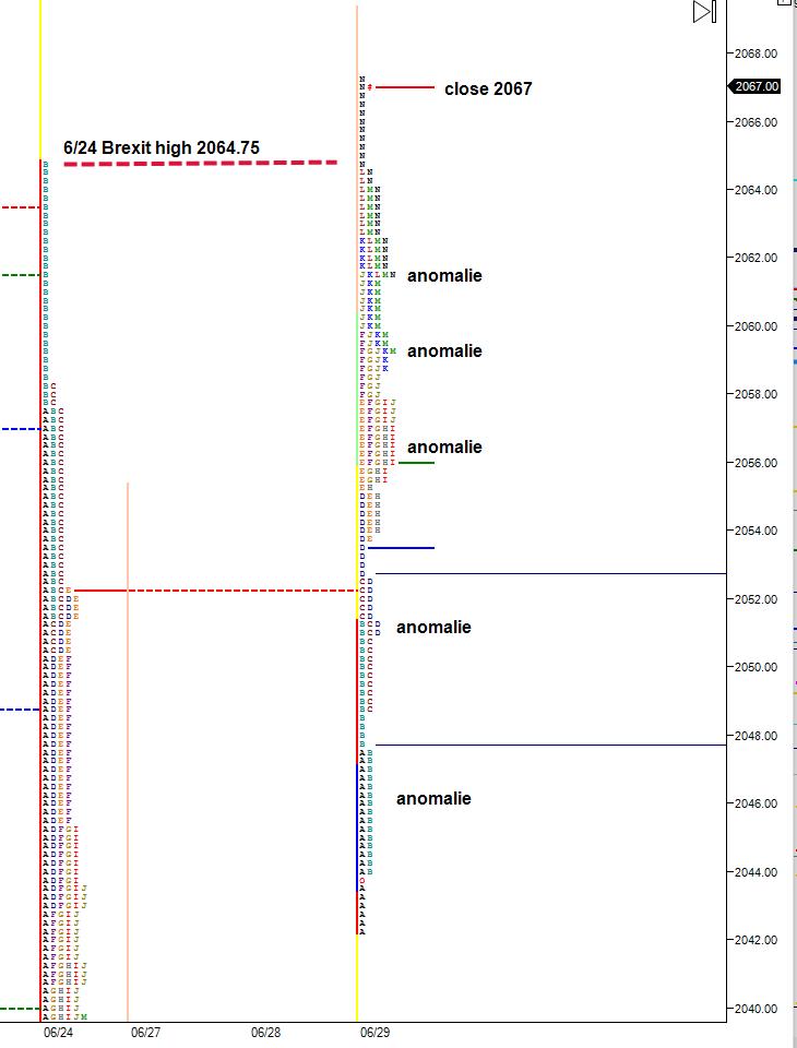 multiple-anomalies-market-profile-chart